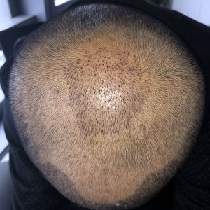 憨豆先生-植发术后第5天图片