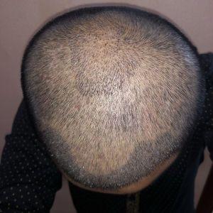 憨豆先生-植发术后第8天图片