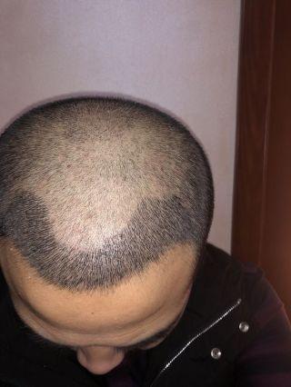 憨豆先生-植发术后第13天图片
