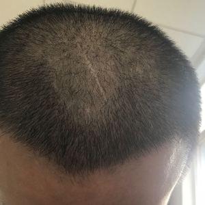 浪人-植发术后第15天图片
