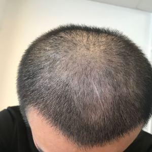 浪人-植发术后第19天图片