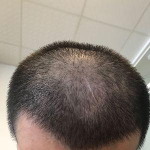 浪人-植发术后第23天图片