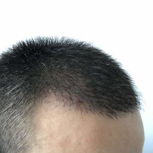 散发弄扁舟-植发术后第28天图片