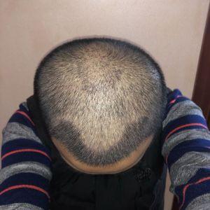 憨豆先生-植发术后第15天图片