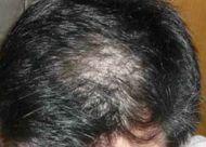 脂溢性脱发常发生于那个年龄?常见的四种类型脱发