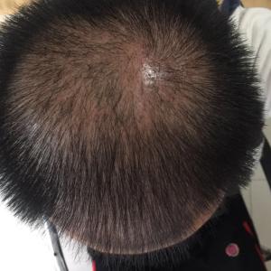谎言站不长-植发术后第41天图片