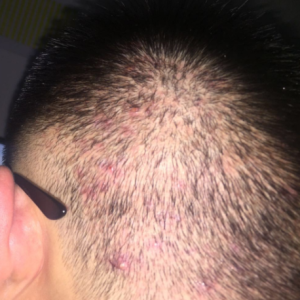谎言站不长-植发术后第51天图片