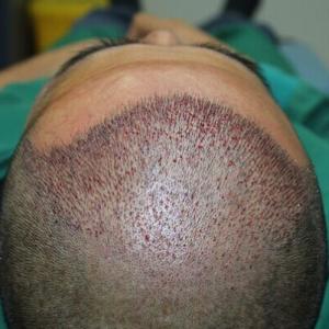 他的剪刀手-植发术后当天图片