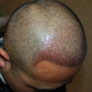 他的剪刀手-植发术后第1天图片