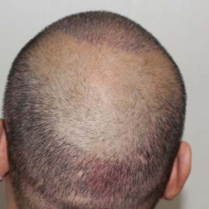 讨饭的和尚-植发术后第6天图片