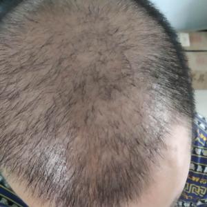 讨饭的和尚-植发术后第46天图片