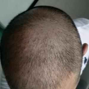 讨饭的和尚-植发术后第76天图片
