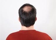 什么是病理性脱发?日常防治的五种方法