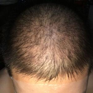 逊色-植发术后第30天图片