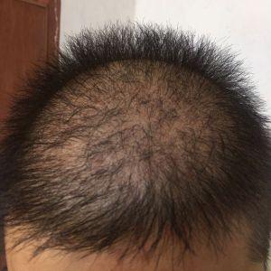 逊色-植发术后第40天图片
