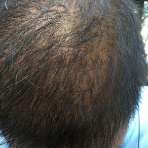 逊色-植发术后第81天图片