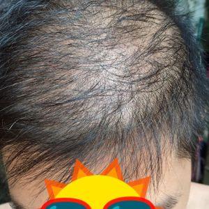 逊色-植发术后第91天图片