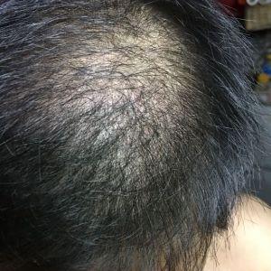 逊色-植发术后第122天图片