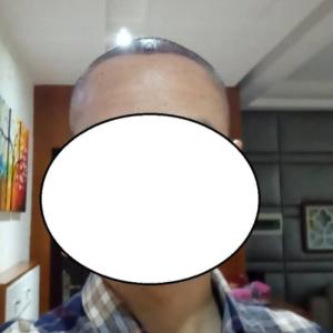 北幕南辞-植发术后第1天图片
