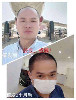 热爱生活植发吧-植发术后第71天图片