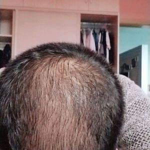 青衫烟雨-植发术后第51天图片