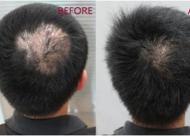 头部疤痕植发效果怎么样 种植后多久能长出来