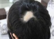 增生疤痕能植发吗 多少岁可以做疤痕植发