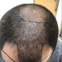 植发前后对比