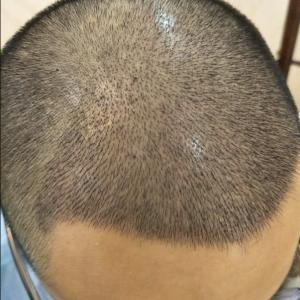顾凉兮-植发术后第7天图片