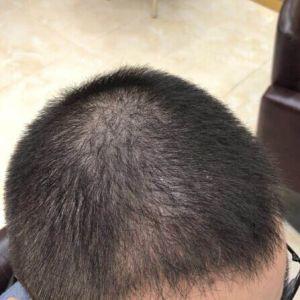 千里寻-植发术后第88天图片