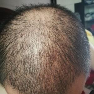 又卉-植发术后第19天图片