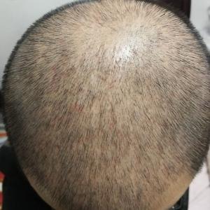 又卉-植发术后第53天图片