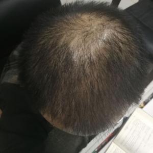 又卉-植发术后第39天图片