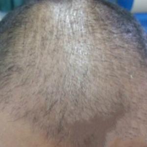 罢了-植发术后第61天图片