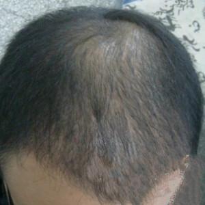 罢了-植发术后第92天图片