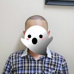 酒爱-植发术后当天图片