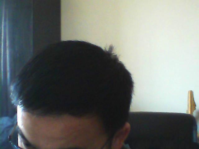 天生大额头 种植的发际线效果图(来自用户 : 患得 的植发效果分享)