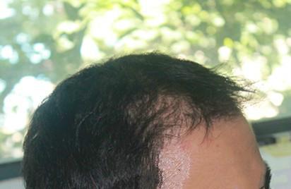 疯狗-植发术后第90天图片