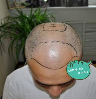 笑你慌-植发术后当天图片