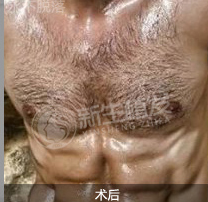 够坏才男人-植发术后第137天图片