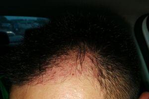 为什么我植发2个月了,取发区还是这么红?