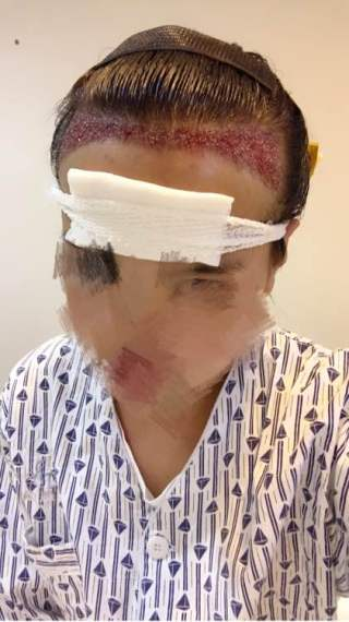 匹马又西风-植发术后当天图片
