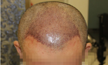 国际美男-植发术后当天图片