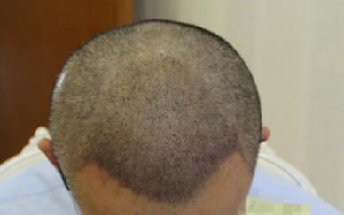 国际美男-植发术后第3天图片