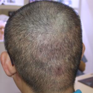 国际美男-植发术后第9天图片