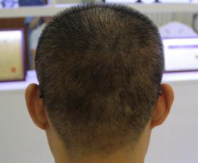 国际美男-植发术后第33天图片