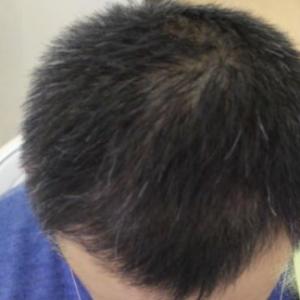 国际美男-植发术后第303天图片
