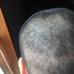 茈娚孓-植发术后第8天图片