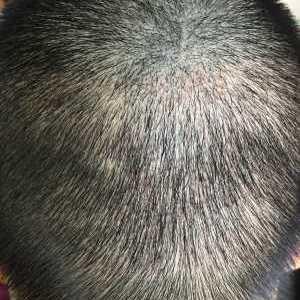茈娚孓-植发术后第14天图片