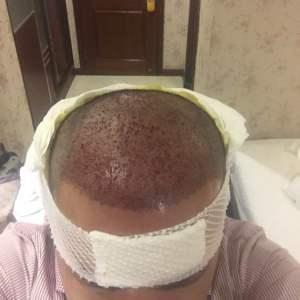哟西花姑娘-植发术后当天图片